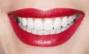 perfect-teeth