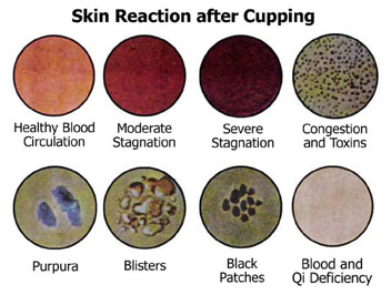 cupping reactions