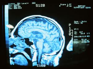brain injuries in North Carolina