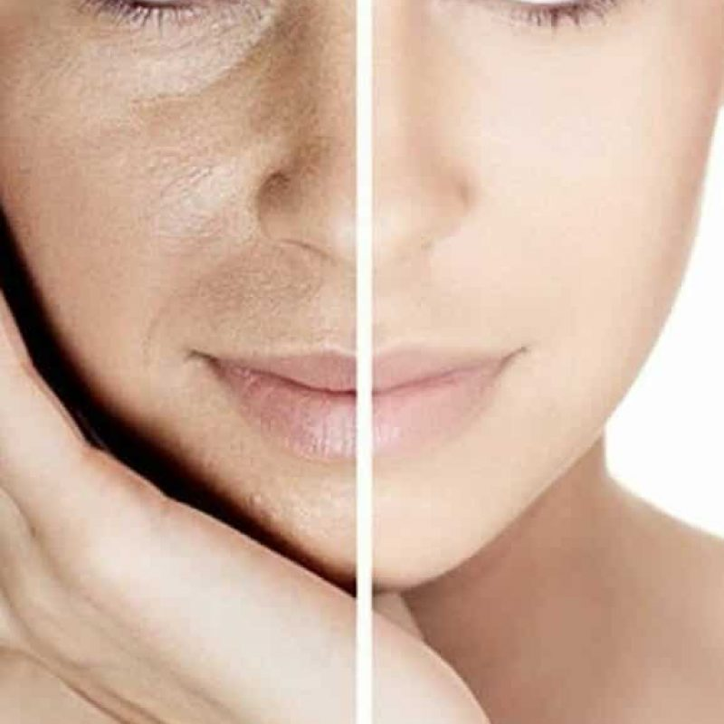 hydrated skin, Iv therapy for beautiful skin.