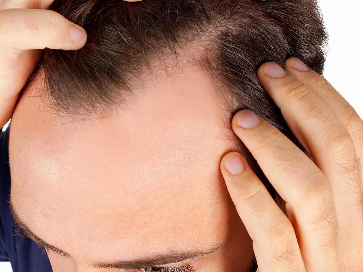 How Much Does A Hair Transplant Abroad Actually Cost?