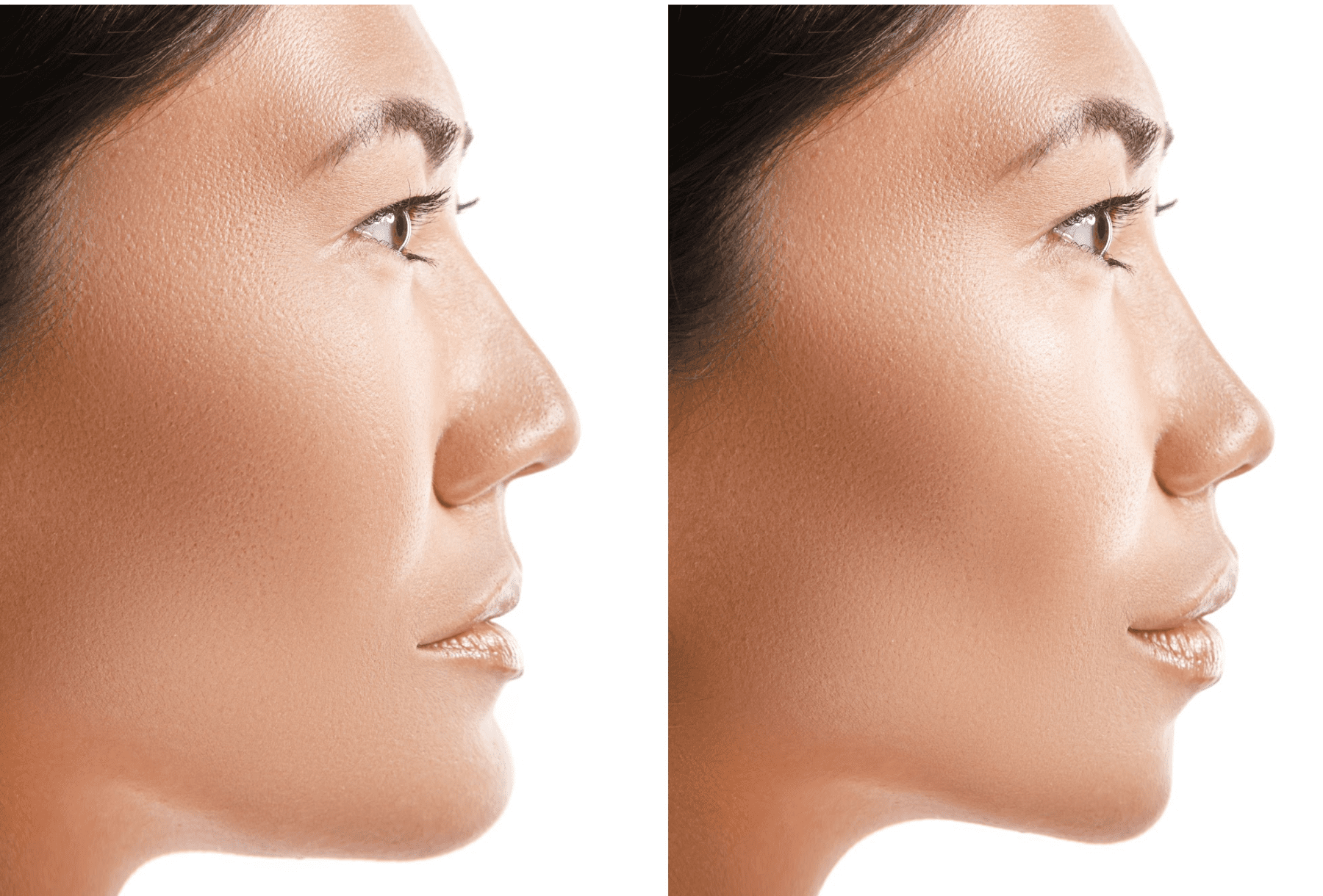 How Long Does It Take To Recover From a Nose Surgery