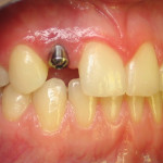 Implant Before