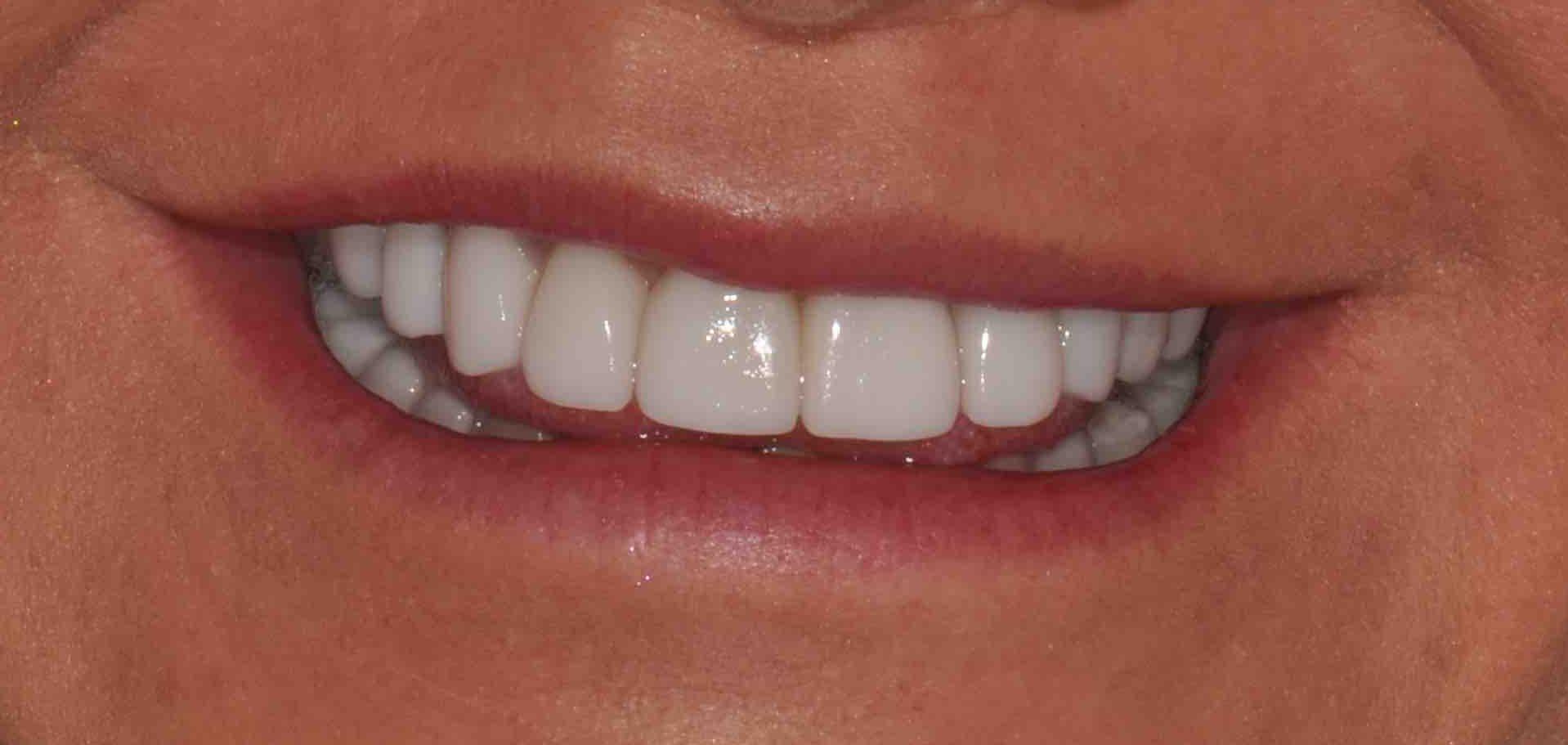 2 smile H full face