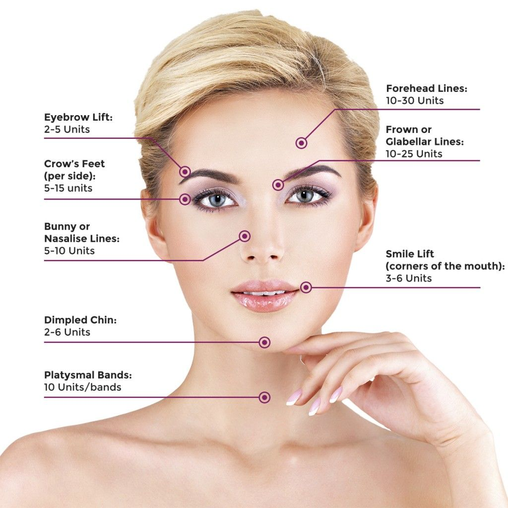 Botox Injection Areas