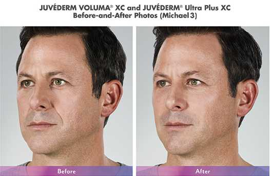 Juvederm Voluma and Ultra Plus