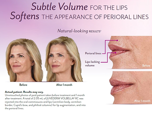 Vobella for Lips