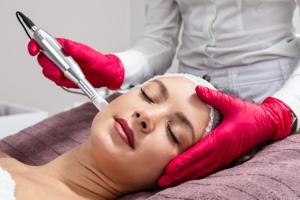 Microneedling rejuvenation treatment.