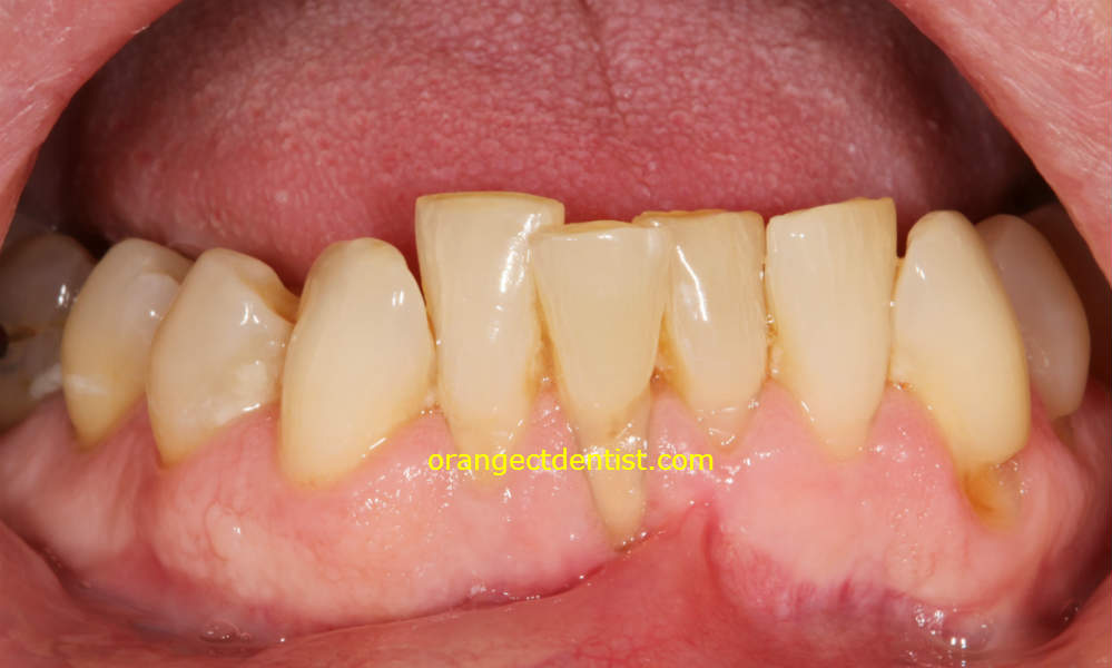 Crooked lower teeth that need straightening by invisible braces in our Orange and Woodbridge CT dentist office