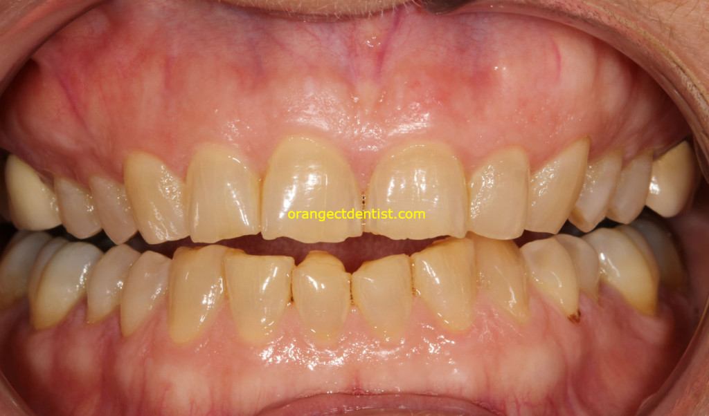 Photo of Years of wear from grinding and clenching her teeth due to stress. She got a nightguard.