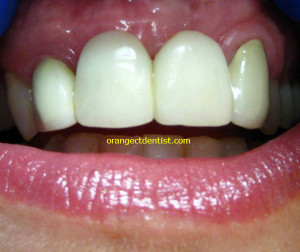 Ugly dental crowns on front teeth - everything you should not do