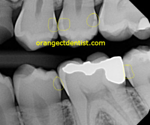 Dental x-ray showing decay or cavities between the teeth