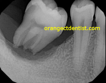 X-ray or radiograph of dental abscess with tooth on Milford, CT patient but helpful to Ansonia, CT people