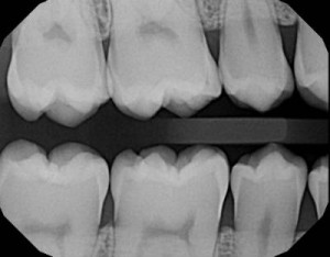 Extraoral bitewing dental x-rays we can take without causing you to gag