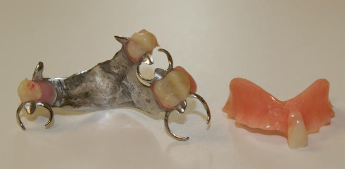 Two types of partial dentures for patients from Derby and Ansonia and West Haven, CT
