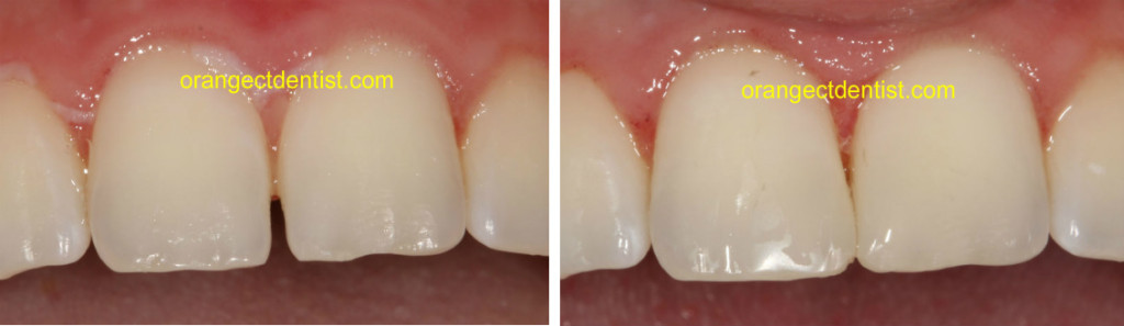 Bonding photograph showing cosmetic dentistry at our Orange and Woodbridge CT dental office