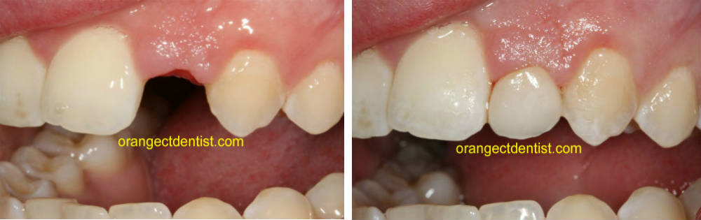 Before and after photo of dental bridge for missing teeth in Milford and West Haven CT