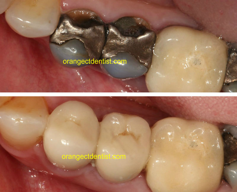 Before and after photo of all ceramic crowns on teeth with dark silvery fillings