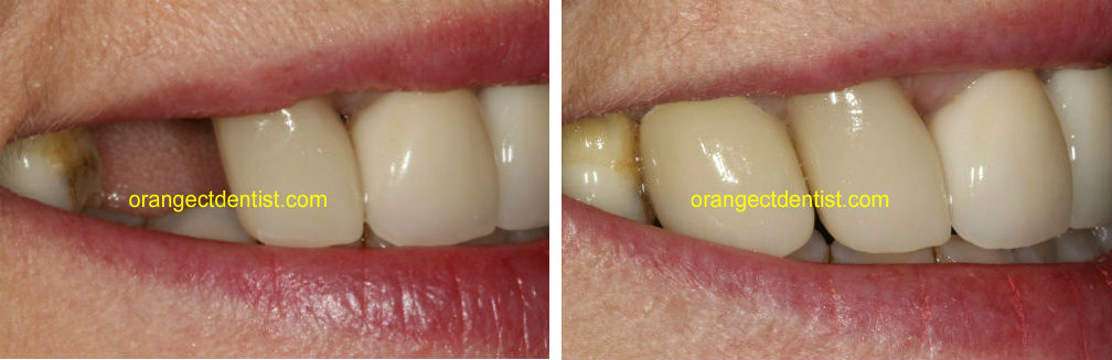 Dental Implant before and after photo showing a toothless smile and then one with a tooth
