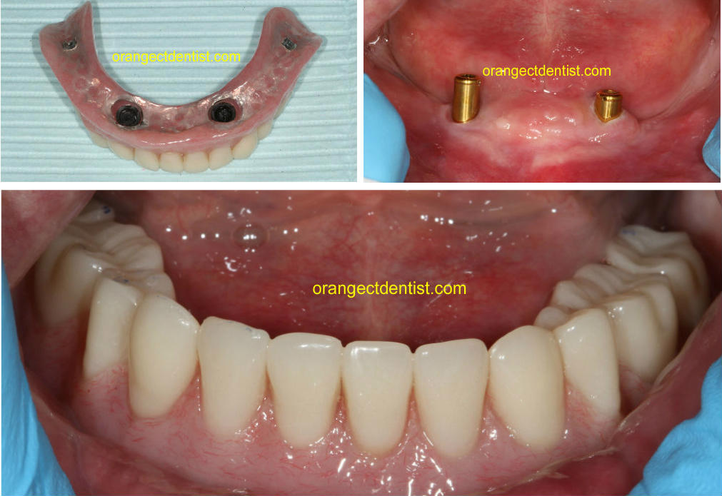Lower implant overdenture photo from our Orange, CT dentist office where no more adhesive is needed