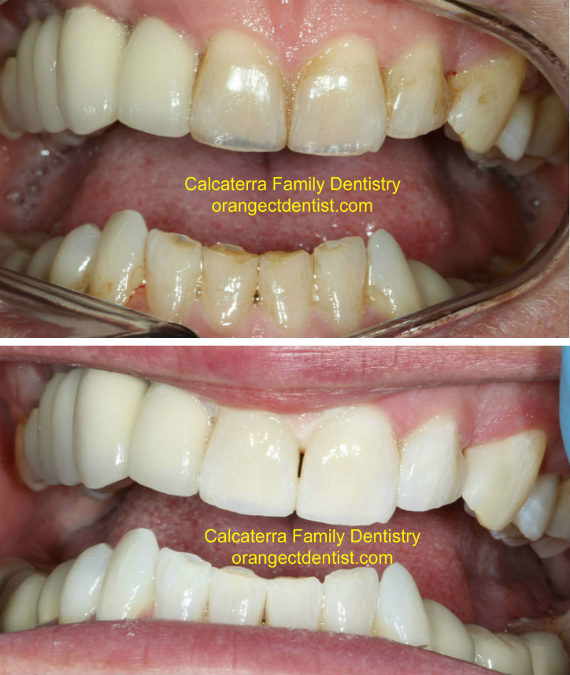 Before and After Teeth Whitening Zoom Orange and Milford and Woodbridge, CT