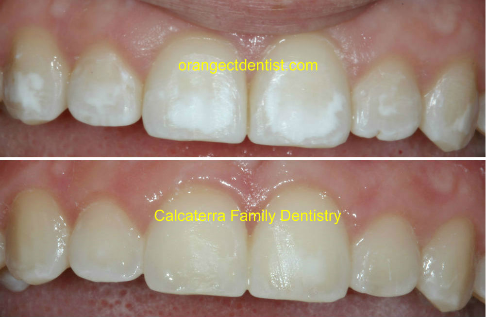 Non invasive white spot treatment before and after photos at the dentist after braces and orthodontics