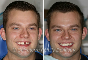 Before and After photo and picture of dental implants for a front tooth.