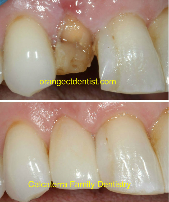 Dental crown lengthening in our Orange and Milford, CT office before and after photos