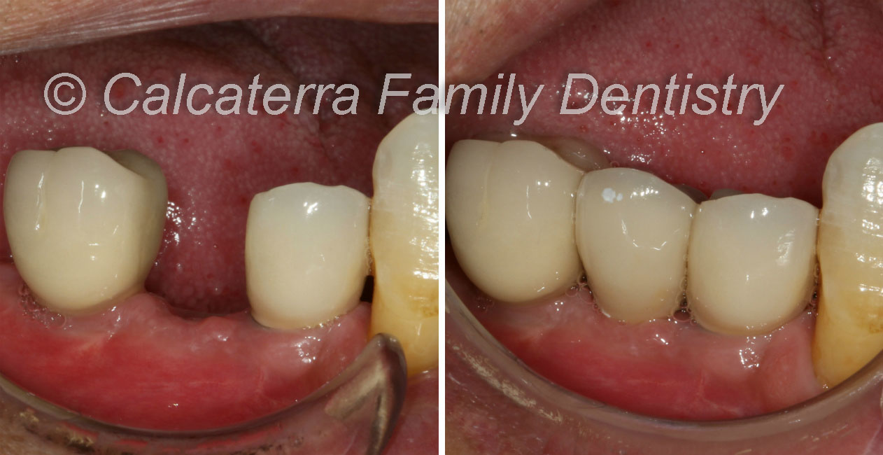 Pre and Post op dental implant photos done in our dentist office