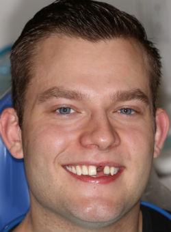 A beautiful pre-operative dental implant photo