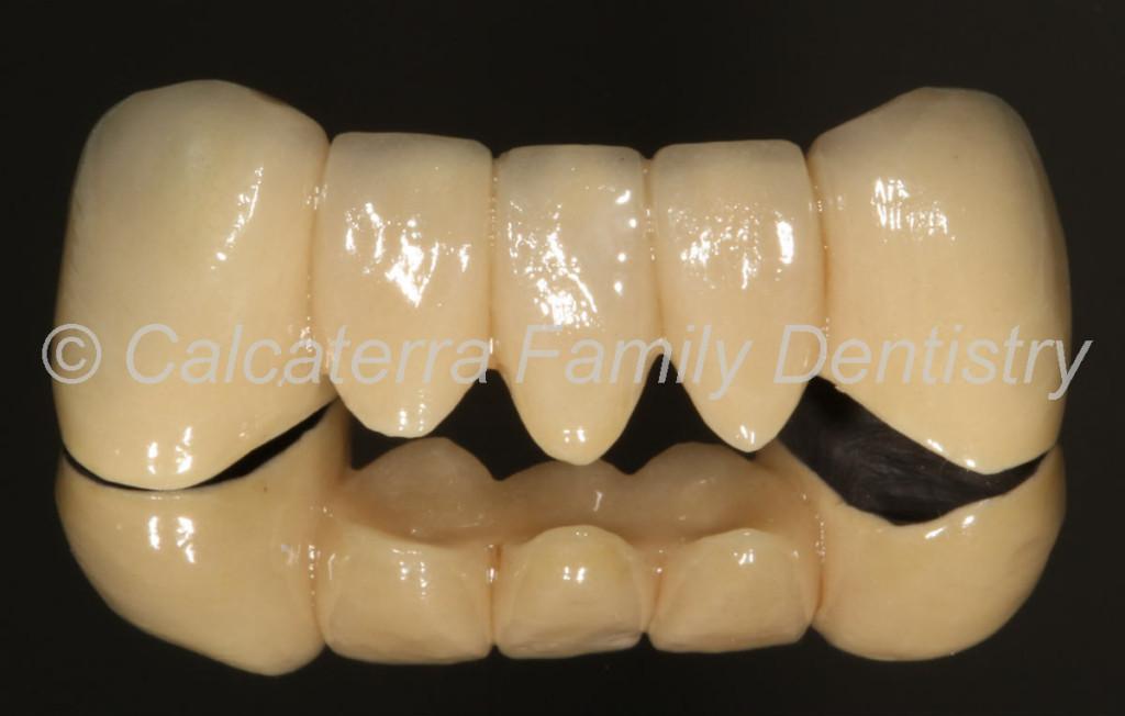 cool dental bridge photo showing teeth and pontics