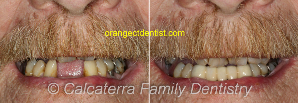 Lower dental bridge with canines and incisors before and after photos
