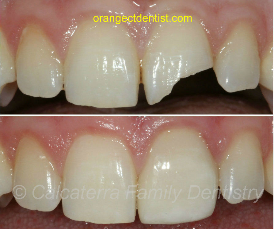 Before and after photo front teeth and hockey puck dentist with crown
