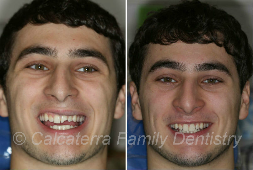 Hockey Puck damage to front tooth before and after photos of dental work