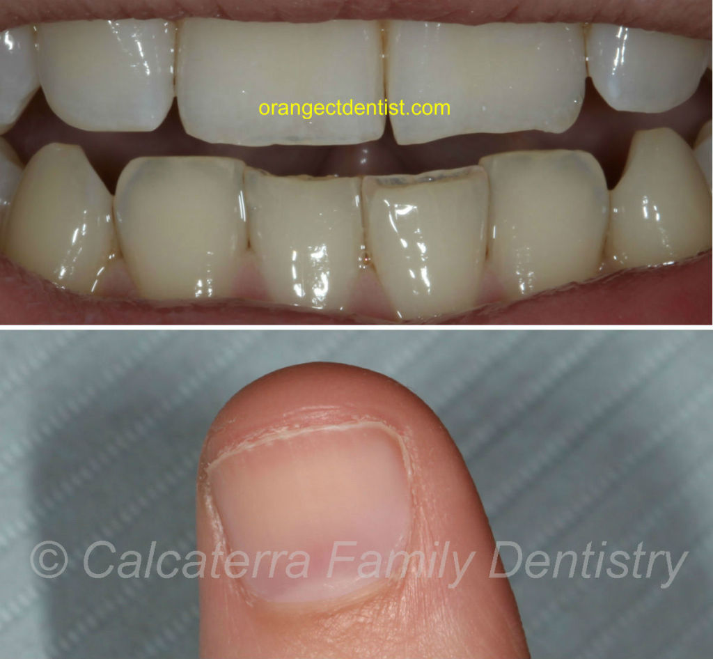 Detailed photo showing wear of teeth from nail biting