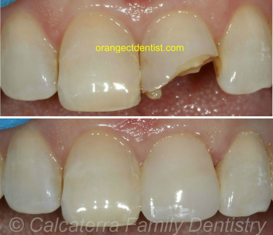 Before and after photos showing broken front tooth fixed with bonding