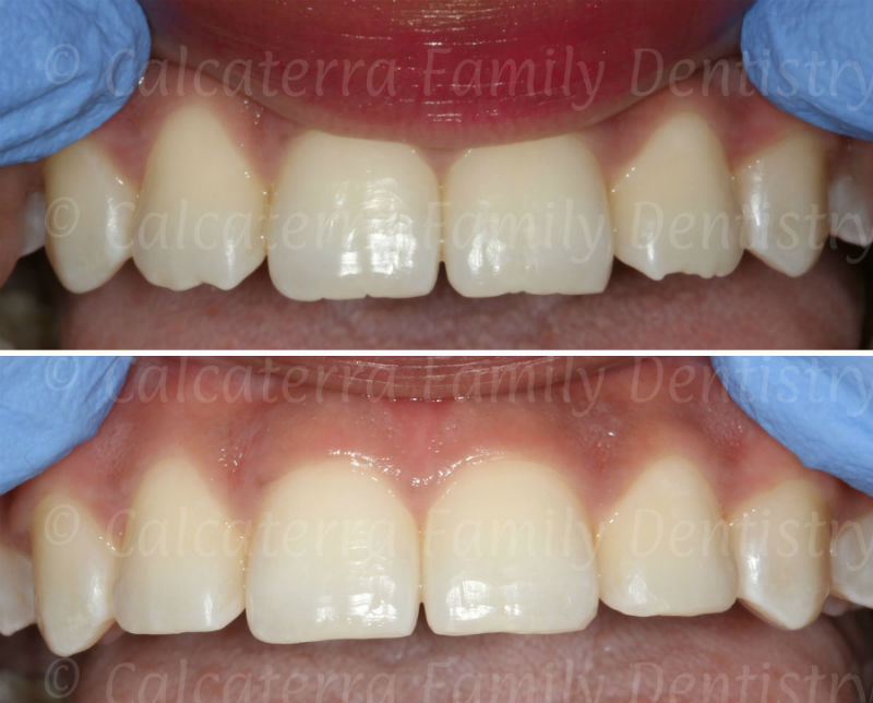 esthetic recontouring and shaping photos of upper front teeth