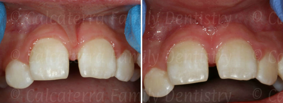 before and after laser frenectomy photos on a 10 year old patient before braces.