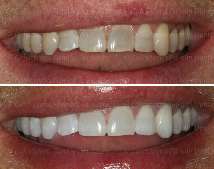 Kor Whitening Before and After photos at Orange, CT dentist