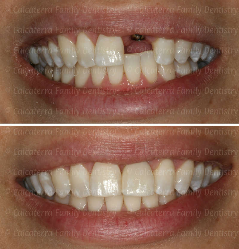 before and after photo front tooth implant