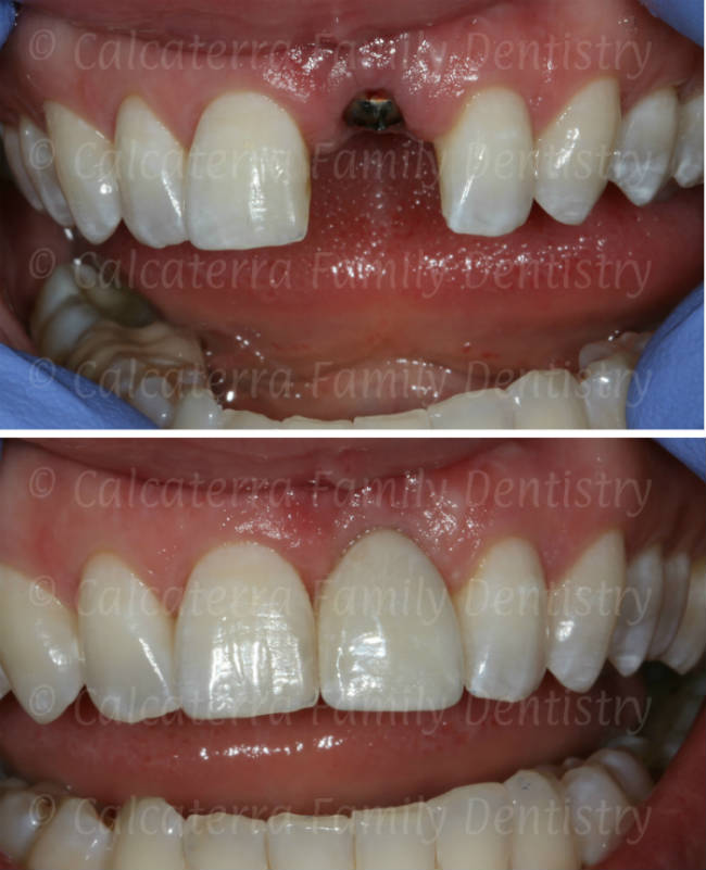 before/after dental implant photo