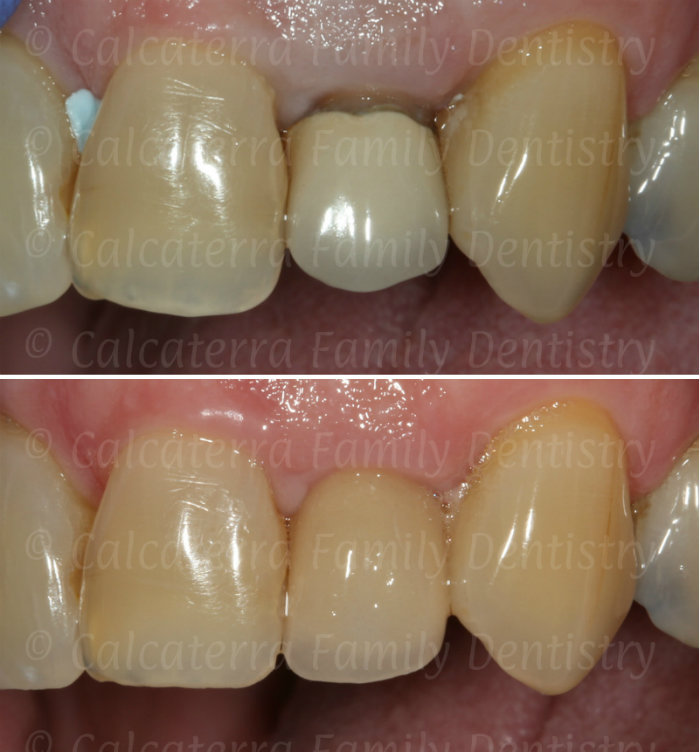 Amazing before and after photo of fixing a black line on a dental crown