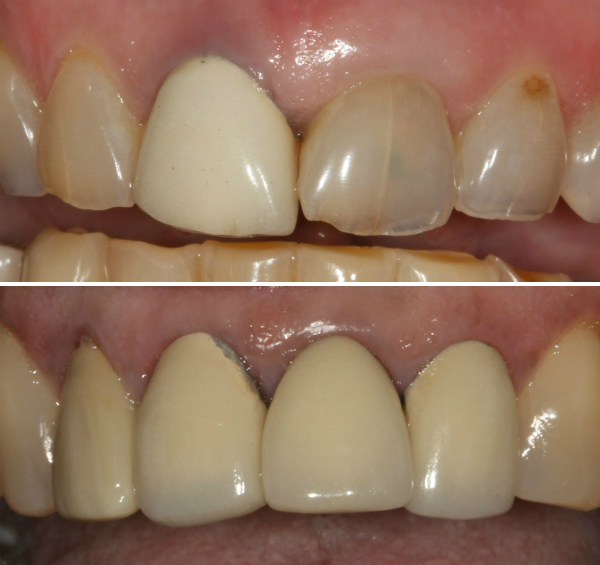 Ugly dental crowns that took only 45 minutes