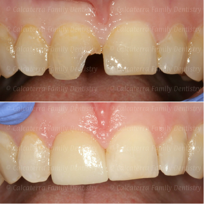 before and after photos showing a single central incisor crown