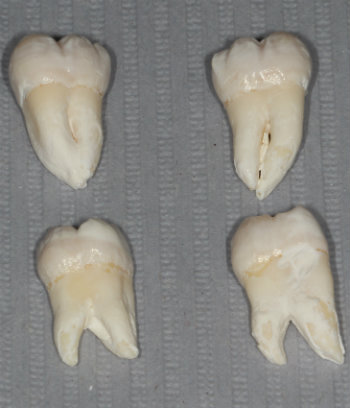 upper versus lower wisdom teeth which cause pain