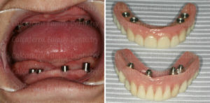 Dental implants holding in a dentures