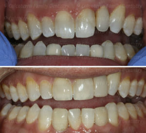 Before and after photos of Mark's new smile
