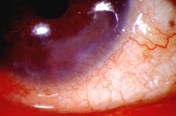 Rosacea- Ocular