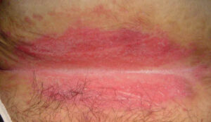 Close Up of Intertrigo on Skin