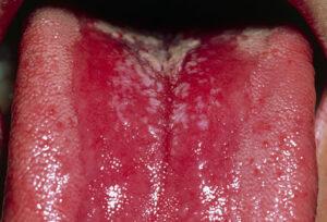 Thrush- Tongue